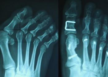 stopa-rekonstrukcjaorig